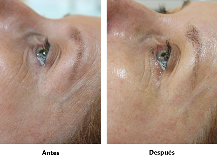 Rocio_Bosque_contorno_ojos_procollagen_cellcosmet_paso_2_1 - copia (5)