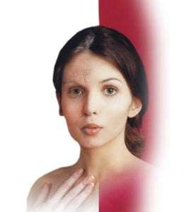 fytofontana-estetica-belleza-madrid
